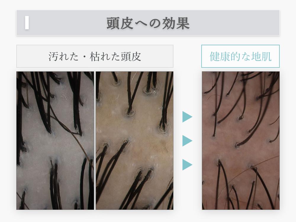 プリュムシャンプーは髪と同じ「アミノ酸」